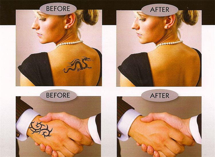 Tatoo Cover Up for Your Wedding Day | Beautiful You Makeup and Hair ...